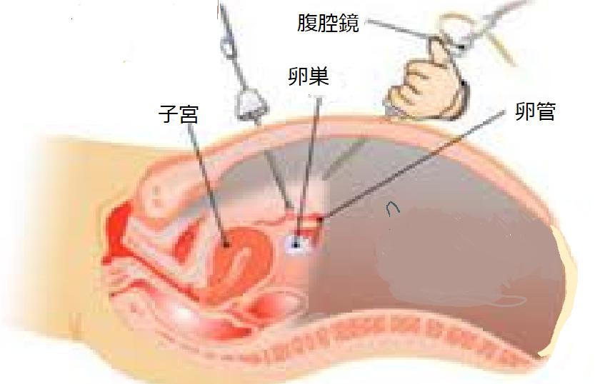 不妊治療における腹腔鏡手術が必要な人は? | 妊活治療Q&A